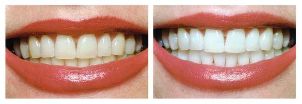 отбеливание зубов в новосибирске